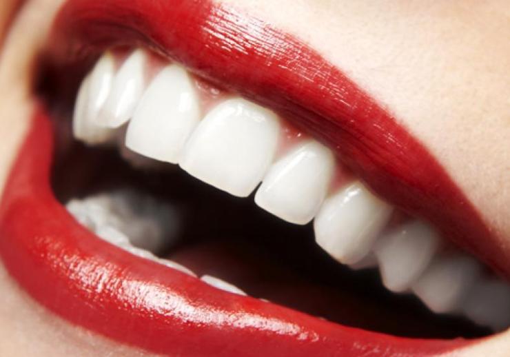 batom ideal para dentes mais brancos